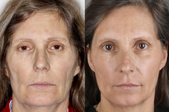 Antes e Depois Imagem